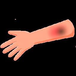Tratamiento de Secuelas en Pacientes con Quemaduras del Miembro Superior (Axila, Codo y Mano). Comparación de las Diferentes Técnicas y Manejos.